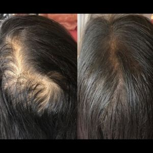 Advanced hair growth butter